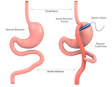 bariatric surgery, Steve Parker MD